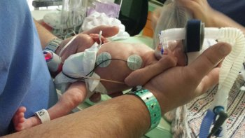 Liam in the NICU