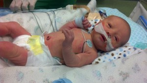 Travis on his first day in the NICU
