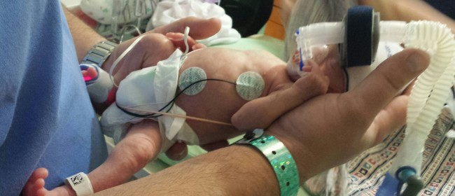 A Little Warrior Inspires His Mother to Donate Breastmilk